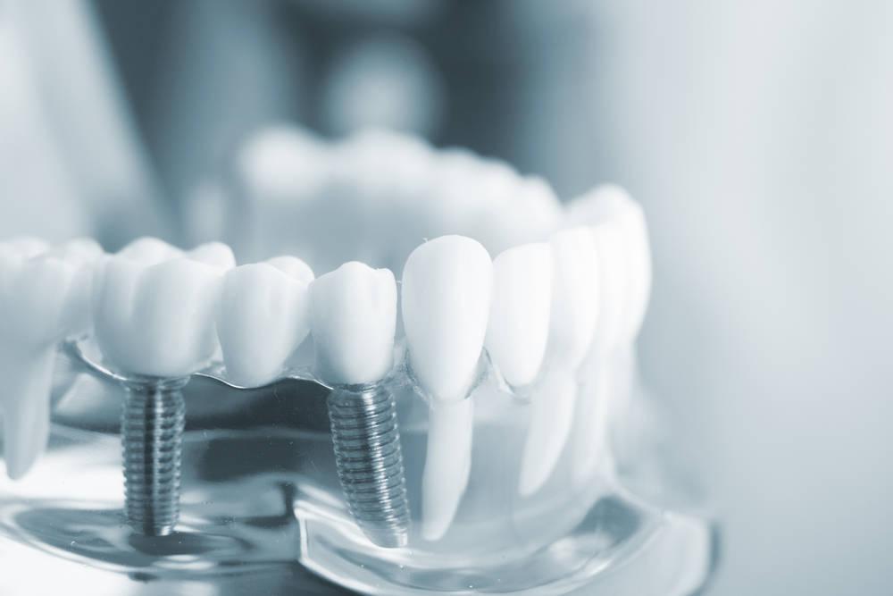 Los implantes dentales, una solución cada vez más popular