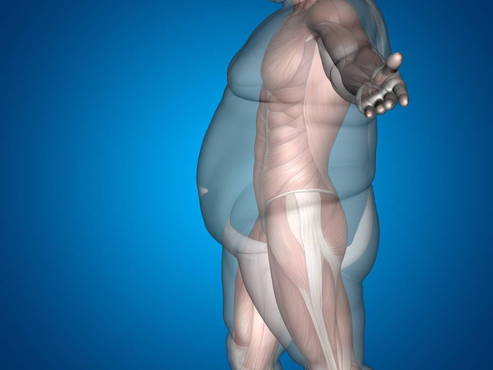 La obesidad y el sobrepeso afecta ya al 25% de la población española