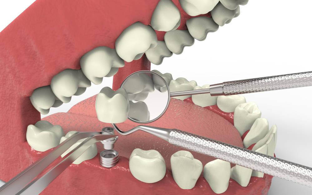 Los implantes dentales, una gran solución para lograr una buena salud bucodental