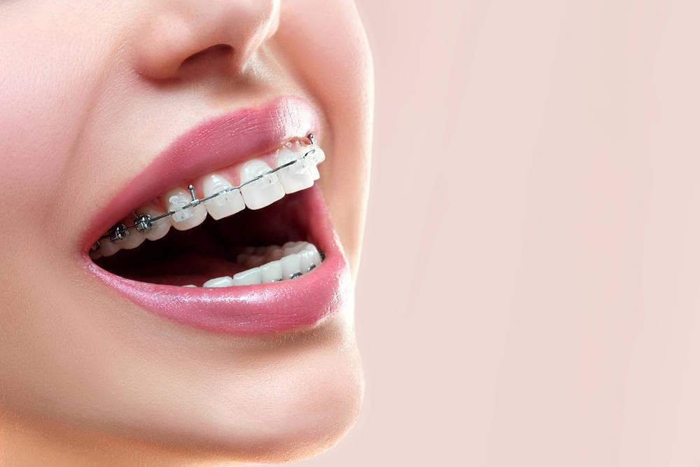 Conoce una nueva tecnología en ortodoncia